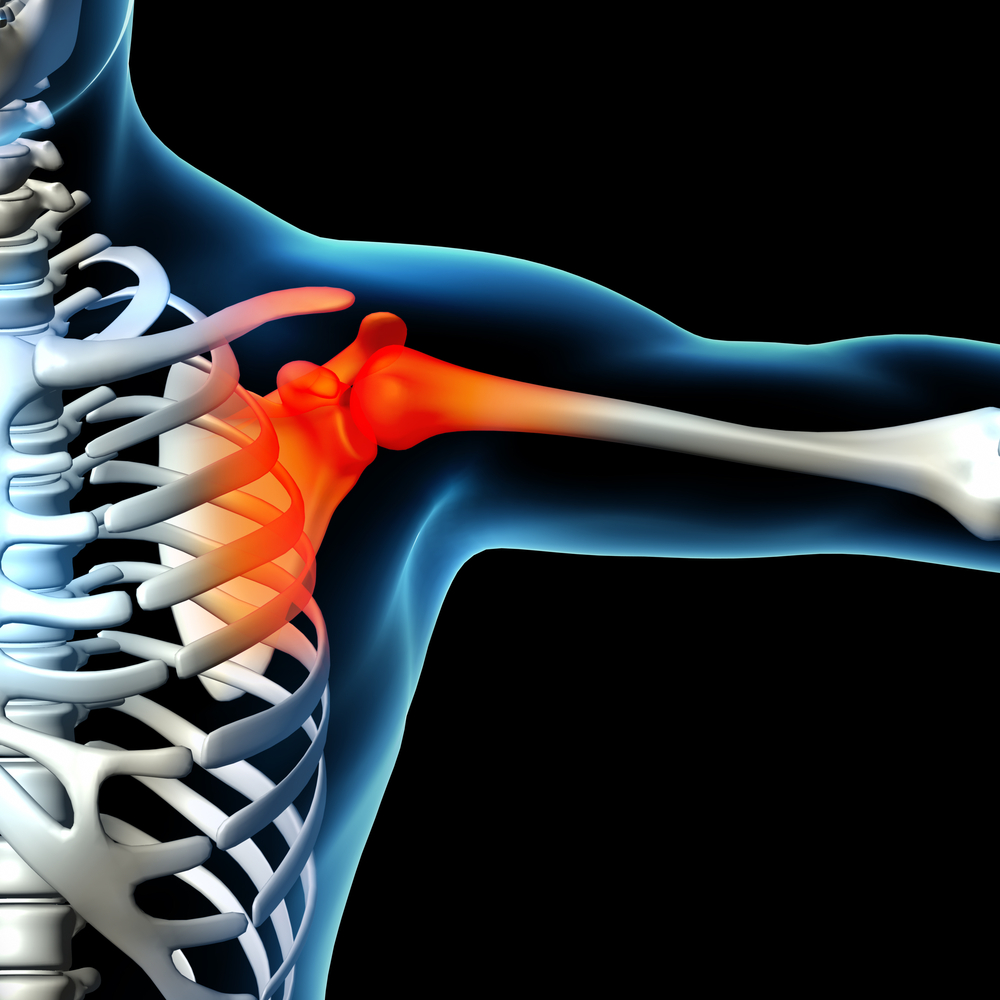 Musculoskeletal Sports Injury